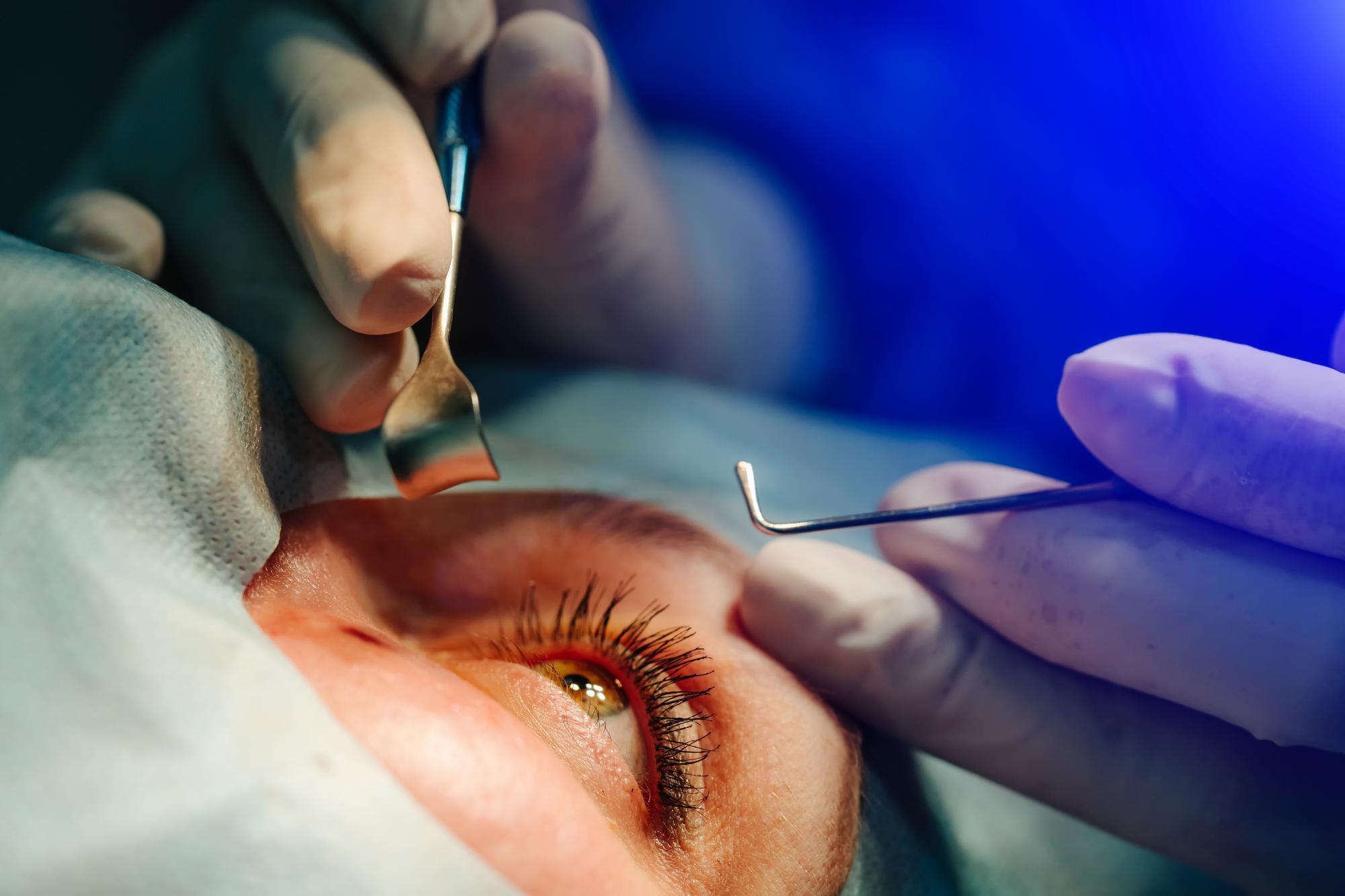 operacja oka jaskra
